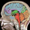 <b>Brain networks</b>